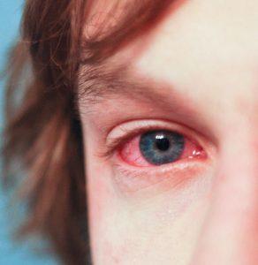 Simptomi alergije na cvetni prah