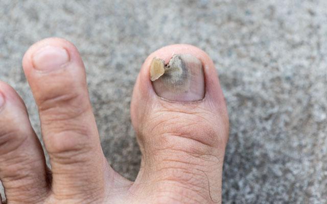 Glivice na nohtih nog