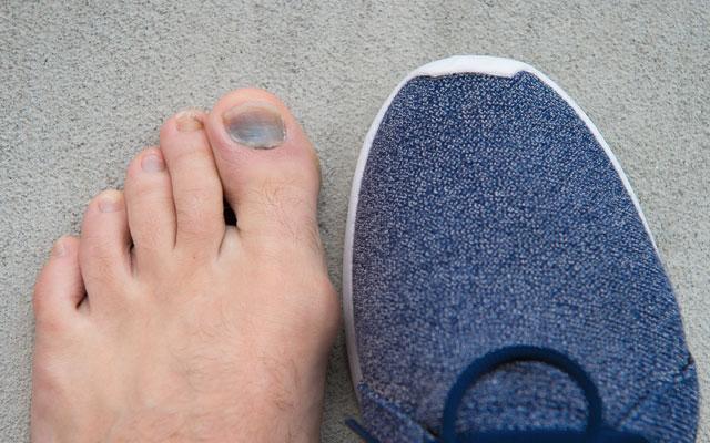 Glivice kot posledica pretesne obutve