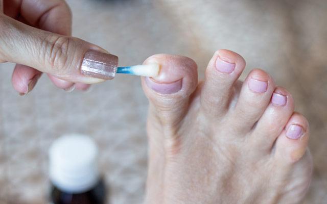 Zdravljenje glivične okužbe
